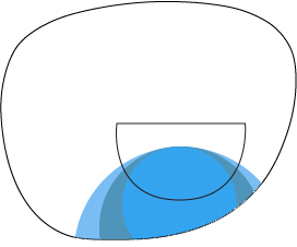 ff trifocal 1