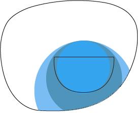 ff trifocal 2